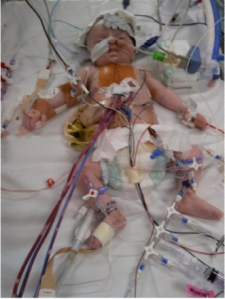 Daniel at 6 weeks old recovering from his first open heart surgery